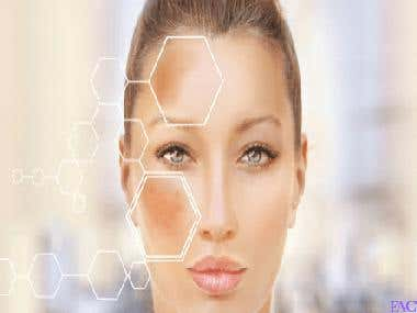 Hydroquinone: Is it the best topical treatment for hyperpigm