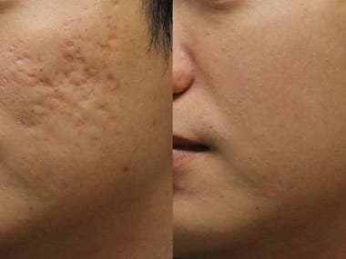 Image editing, acne removal, color correction