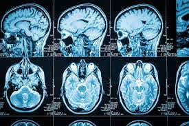 Medical Imaging Improvement by calibraton of congex medical