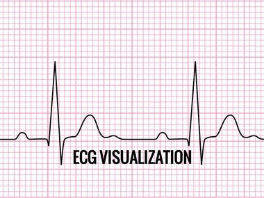 ECG Visualization