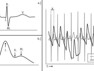 biosensor signal processing