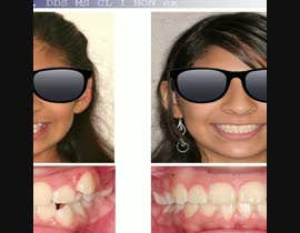 #11 cho create a video movie for before and after dental cases for Mall advertising bởi VideoEditoor