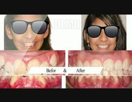 #13 cho create a video movie for before and after dental cases for Mall advertising bởi rizwansarwarcg