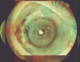 "#18 para Make ""Art"" out of medical ophthalmology pictures por artseba185"